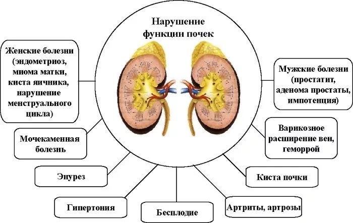 Все заболевания связанные с почками
